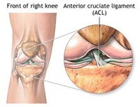 ACL Ligament